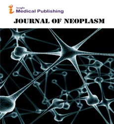 Neoplasm Journals | Insight Medical Publishing | Open Access