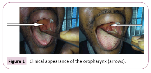 advances-in-applied-science-research-oropharynx
