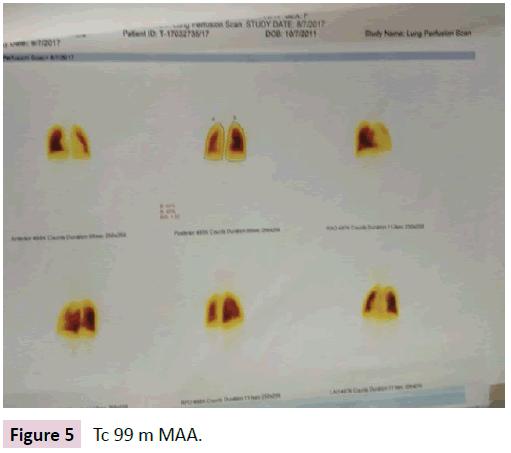 birth-defects-Tc-99m-MAA