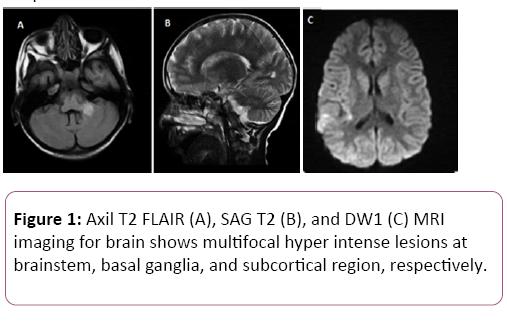 brain-behaviour-and-cognitive-sciences-multifocal