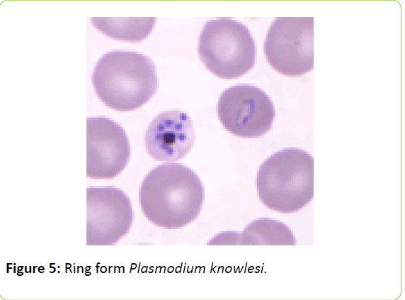 british-biomedical-bulletin-Plasmodium-knowlesi