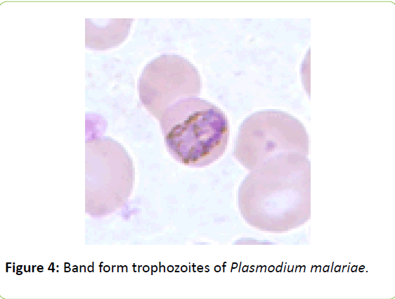 british-biomedical-bulletin-Plasmodium-malariae