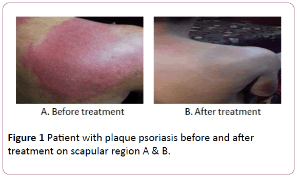 british-journal-of-research-plaque-psoriasis