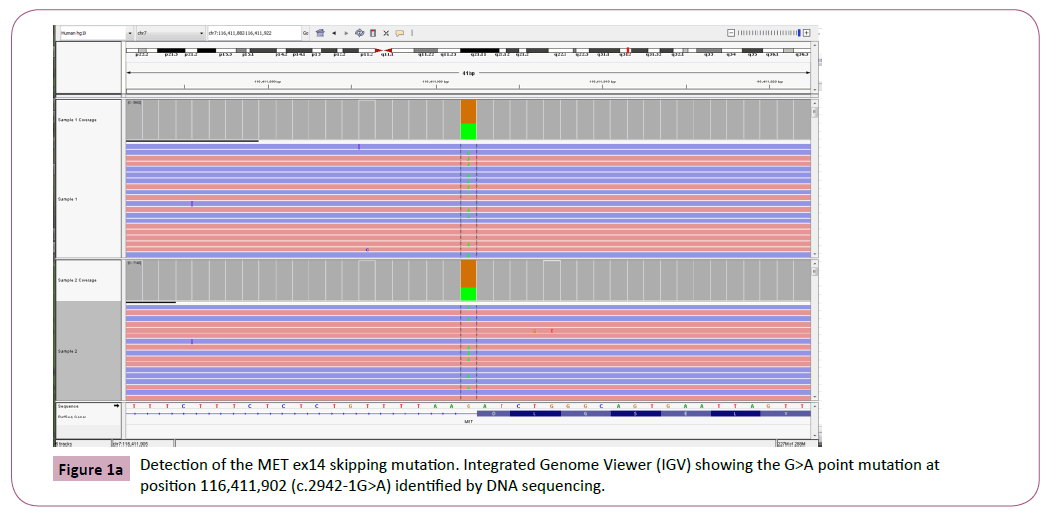 cancer-epidemiology-prevention-Integrated-Genome-Viewer