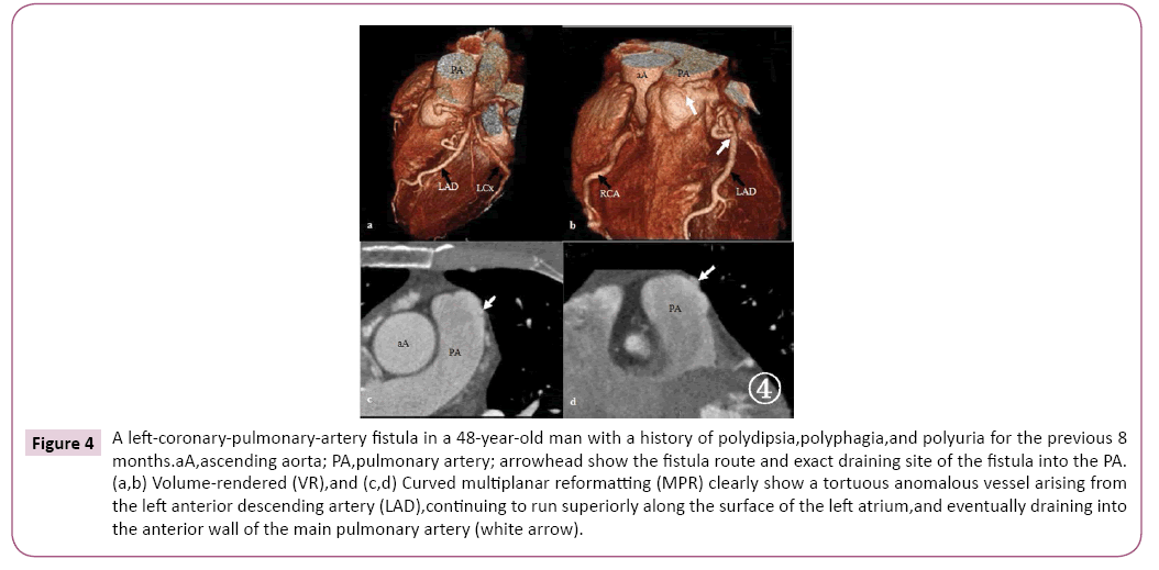 cardiovascular-investigations-open-access-year-old