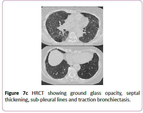 clinical-radiology-case-reports-bronchiectasis
