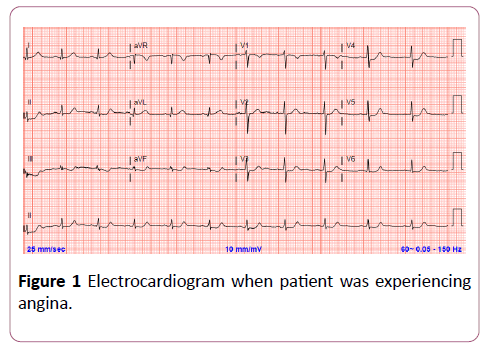 clinical-radiology-case-reports-electrocardiogram