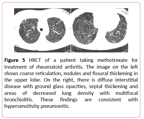 clinical-radiology-case-reports-methotrexate