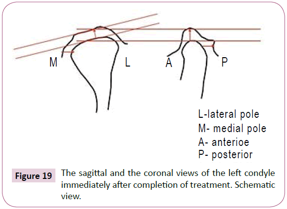 condylar movement assessment is severe attrition patient undergoing