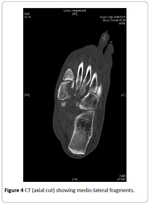 emergency-trauma-care-medio-lateral-fragments