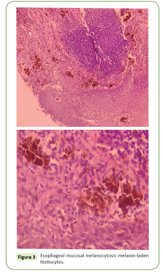 general-surgery-reports-histiocytes