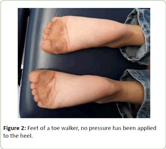 genetics-molecular-biology-toe-walker