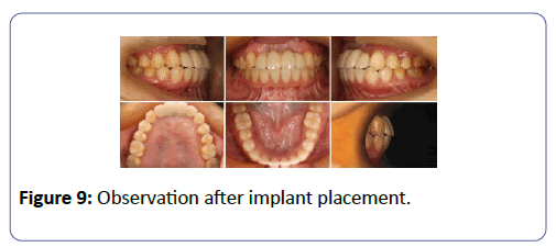international-journal-case-reports-implant-placement