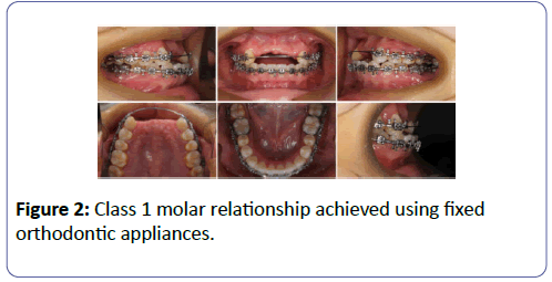 international-journal-case-reports-molar-relationship