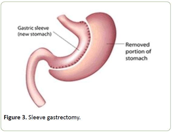 journal-metabolism-Sleeve-gastrectomy