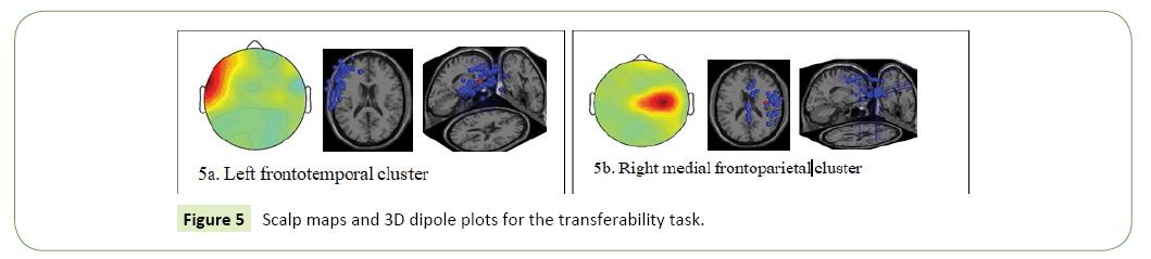 neurological-science-journal-dipole