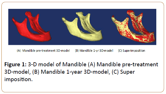 prosthetics-and-orthotics-open-journal-model-Mandible