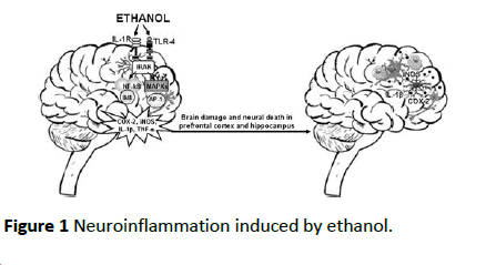 toxicological-analysis-Neuroinflammation