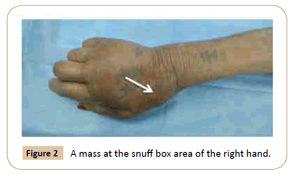 vascular-endovascular-therapy-right-hand