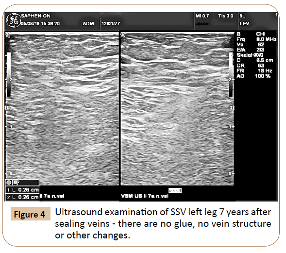 vascular-endovascular-therapy-vein-structure